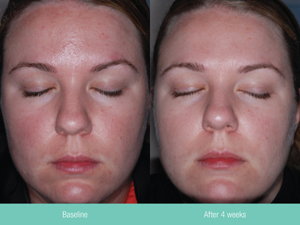 rosacea treatment st petersburg 7275029000