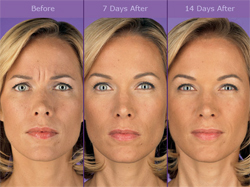 Botox Before & After Photo Woman