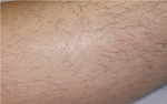 IPL laser hair removal at Fresh Vitality
