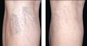 Before and after: The appearance of unsightly leg veins are vastly improved by just one laser treatment.