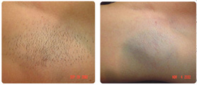 Laser treatment - Before and after permanent hair reduction on underarms
